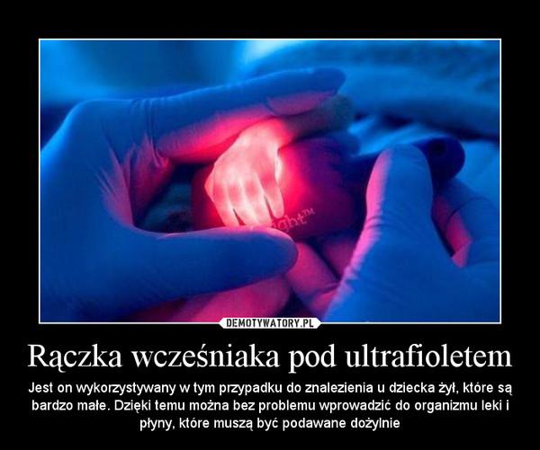 Rączka wcześniaka pod ultrafioletem – Jest on wykorzystywany w tym przypadku do znalezienia u dziecka żył, które są bardzo małe. Dzięki temu można bez problemu wprowadzić do organizmu leki i płyny, które muszą być podawane dożylnie