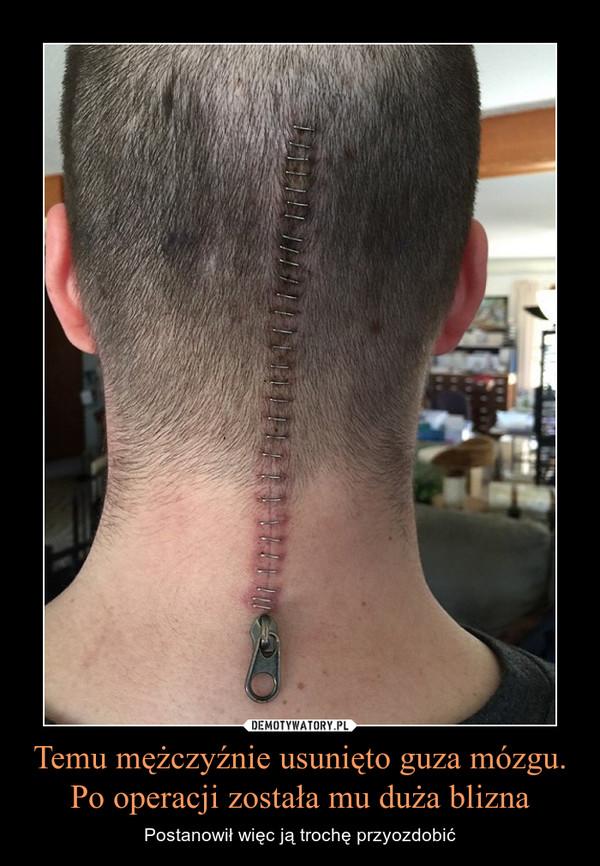 Temu mężczyźnie usunięto guza mózgu. Po operacji została mu duża blizna – Postanowił więc ją trochę przyozdobić