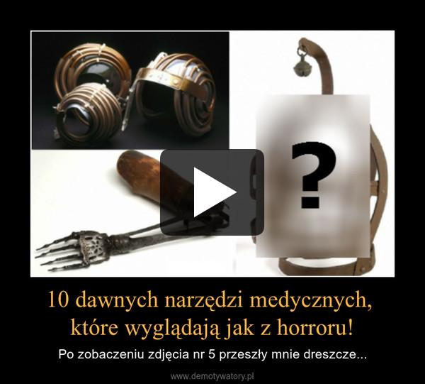 10 dawnych narzędzi medycznych, które wyglądają jak z horroru! – Po zobaczeniu zdjęcia nr 5 przeszły mnie dreszcze...