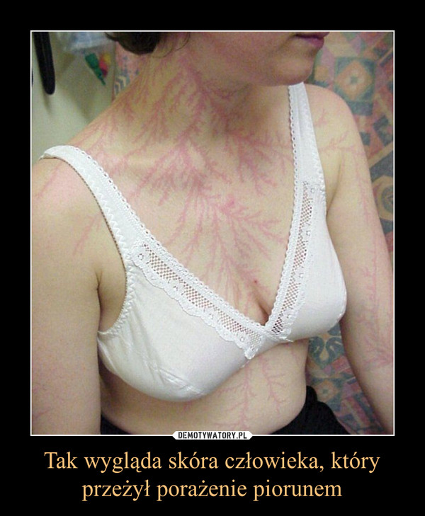 Tak wygląda skóra człowieka, któryprzeżył porażenie piorunem –
