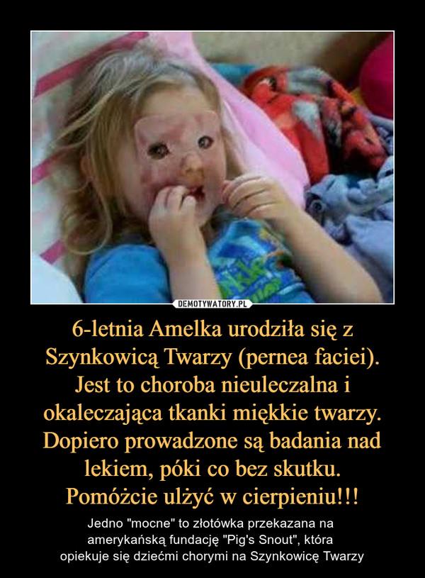 """6-letnia Amelka urodziła się z Szynkowicą Twarzy (pernea faciei).Jest to choroba nieuleczalna i okaleczająca tkanki miękkie twarzy. Dopiero prowadzone są badania nad lekiem, póki co bez skutku.Pomóżcie ulżyć w cierpieniu!!! – Jedno """"mocne"""" to złotówka przekazana na amerykańską fundację """"Pig's Snout"""", która opiekuje się dziećmi chorymi na Szynkowicę Twarzy"""