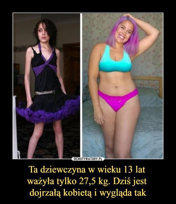 Ta dziewczyna w wieku 13 lat ważyła tylko 27,5 kg. Dziś jest dojrzałą kobietą i wygląda tak –