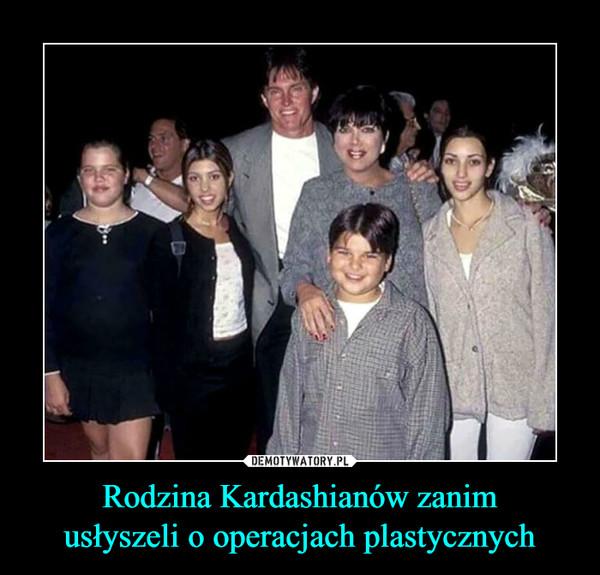 Rodzina Kardashianów zanimusłyszeli o operacjach plastycznych –