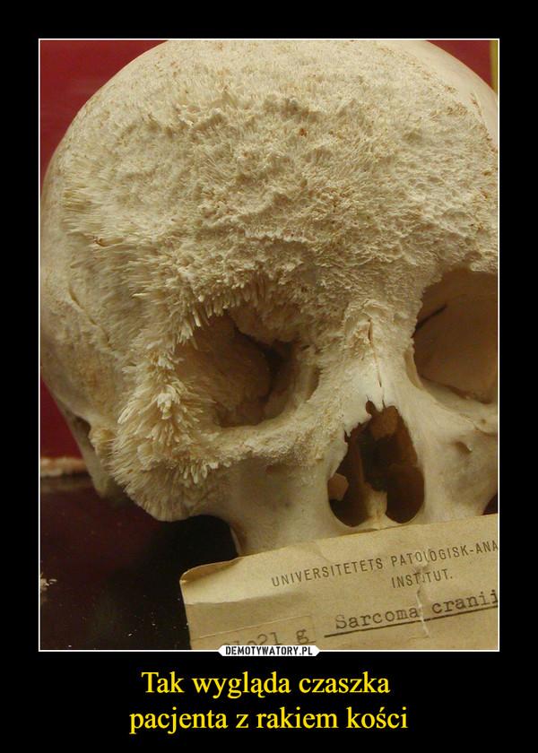 Tak wygląda czaszka pacjenta z rakiem kości –