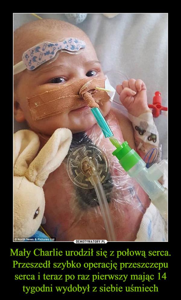 Mały Charlie urodził się z połową serca. Przeszedł szybko operację przeszczepu serca i teraz po raz pierwszy mając 14 tygodni wydobył z siebie uśmiech –