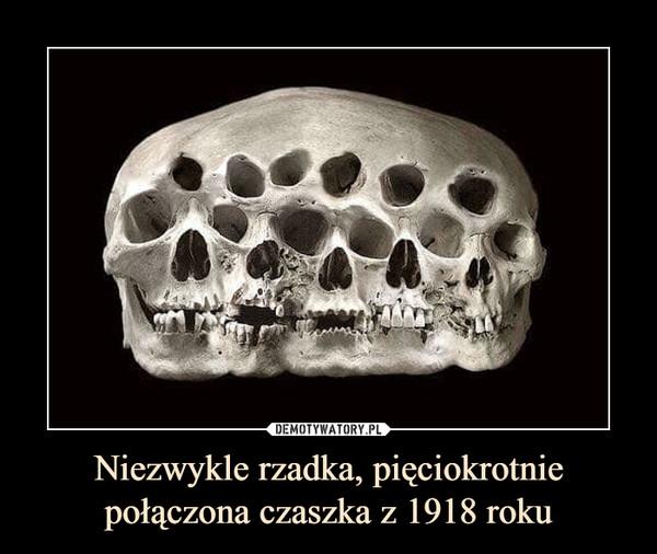 Niezwykle rzadka, pięciokrotnie połączona czaszka z 1918 roku –