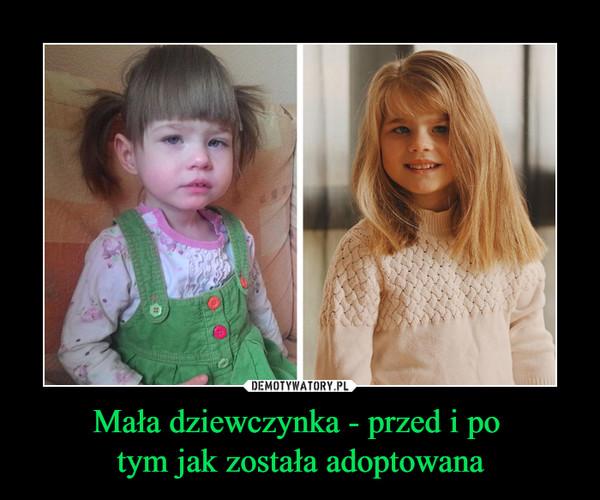 Mała dziewczynka - przed i po tym jak została adoptowana –
