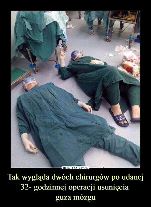 Tak wygląda dwóch chirurgów po udanej 32- godzinnej operacji usunięcia  guza mózgu