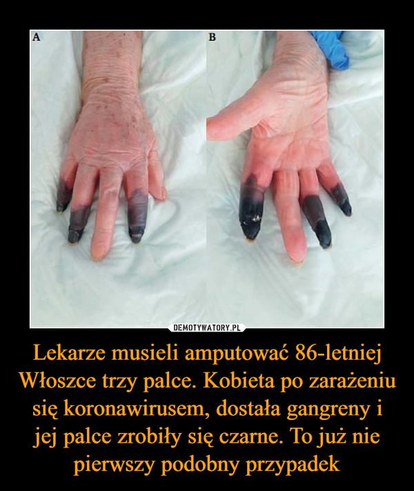 Lekarze musieli amputować 86-letniej Włoszce trzy palce. Kobieta po zarażeniu się koronawirusem, dostała gangreny i jej palce zrobiły się czarne. To już nie pierwszy podobny przypadek –