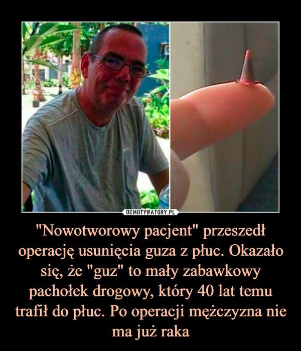 """""""Nowotworowy pacjent"""" przeszedł operację usunięcia guza z płuc. Okazało się, że """"guz"""" to mały zabawkowy pachołek drogowy, który 40 lat temu trafił do płuc. Po operacji mężczyzna nie ma już raka –"""