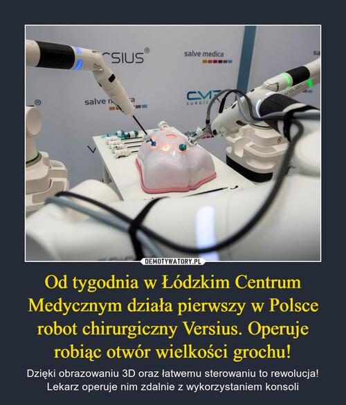 Od tygodnia w Łódzkim Centrum Medycznym działa pierwszy w Polsce robot chirurgiczny Versius. Operuje robiąc otwór wielkości grochu!